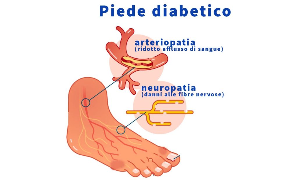 piede diabetico siena
